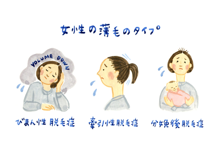 3つの整えメソッド 5月の不調「髪の悩み」