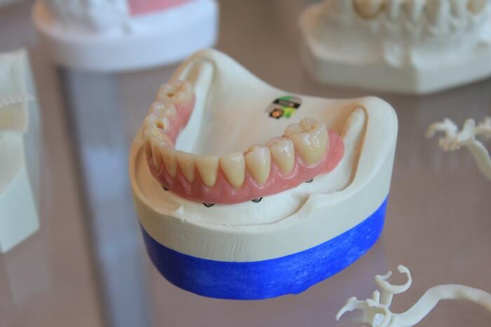 歯肉炎・歯槽膿漏・口臭などの歯周病でお悩みなら、歯周ポケットを清潔に保ち、お口の中を歯周病になりにくい環境へと整えることが大切です。歯周病菌を浸透殺菌できるIPMPなどの薬用成分が配合された薬用歯磨きを使ってみてください。