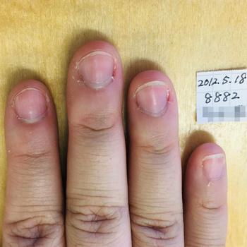 育爪前の30代女性の右手。どの指も爪のピンク部分が小さく、爪周りが乾燥して白くなっています。ささくれもたくさんあります。(日付の2012.5.18は書き間違えで、実際は2021.5.18です)