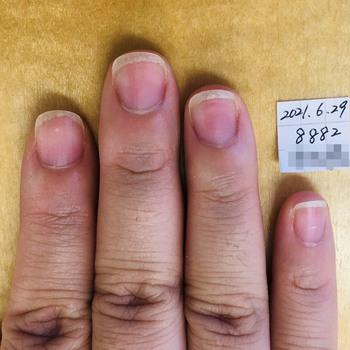 同じ女性の41日後の右手です。4本ともピンク部分が伸びて、縦長な印象に。爪周りの乾燥やささくれがなくなっています。